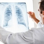 Antimicrobial Peptide Can Exacerbate Lung Infection in Cystic Fibrosis Patients