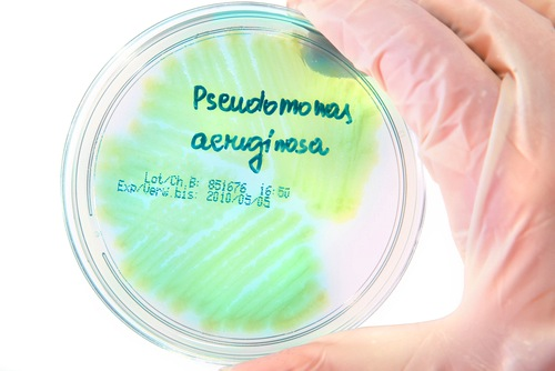 Pseudomonas aeruginosa in CF patients