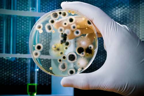 Almost Half of CF Patients are Infected with Aspergillus Mold