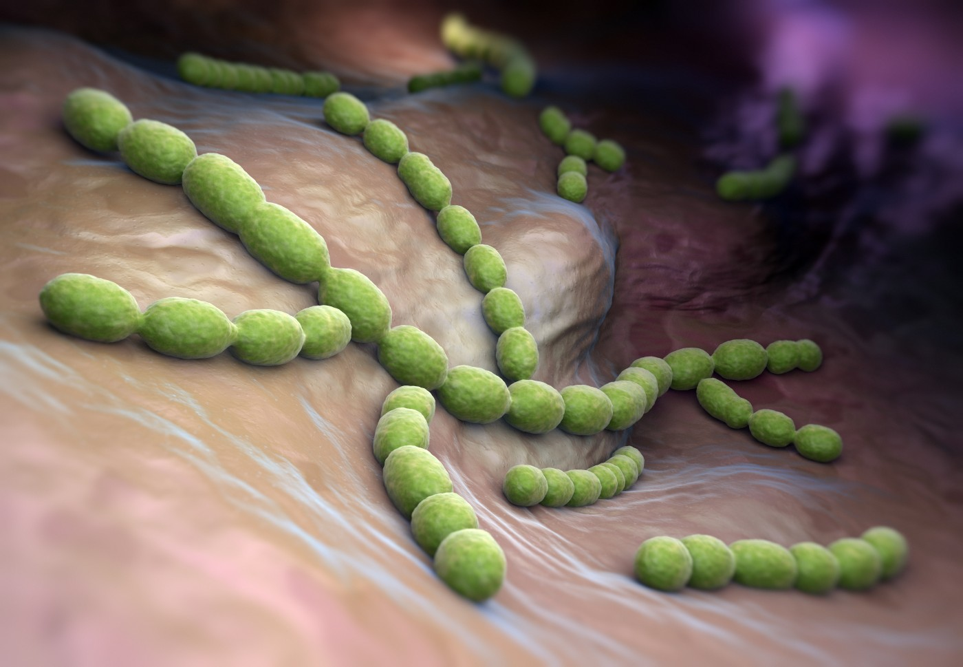 Common Bacteria that Causes Pneumonia Found To Be Rare in CF Patients
