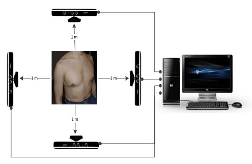 Kinect technology and CF