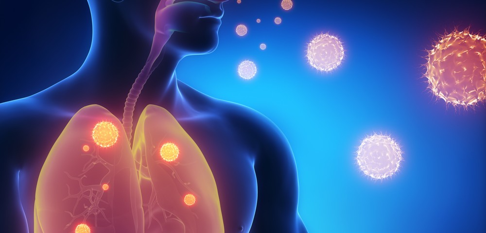 Drug for Pulmonary Infections in Cystic Fibrosis Is Focus of Collaboration with Arch Biopartners, University of Cincinnati