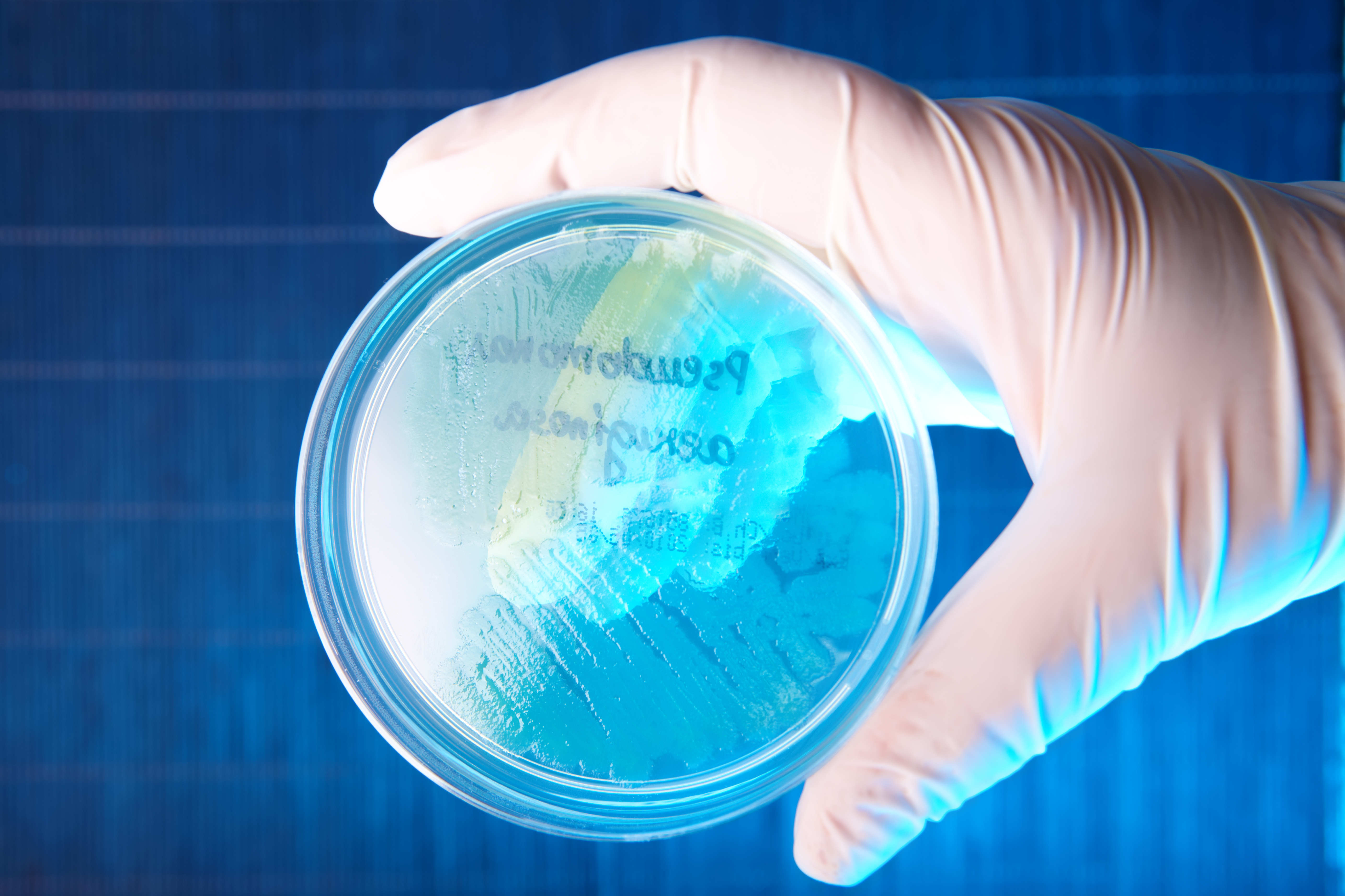 CF bacterial infections