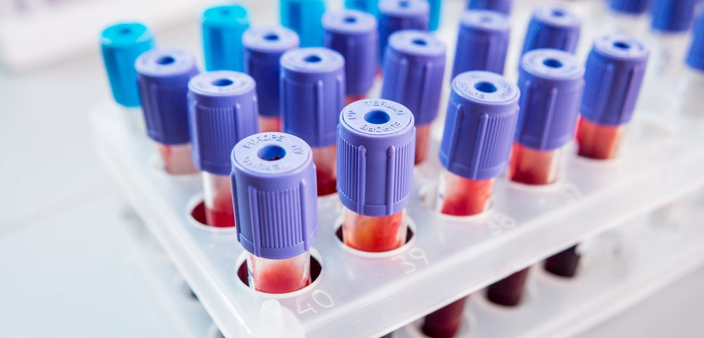 Blood Levels of sCD40L May Be Biomarker for Bacterial Infection in CF Patients