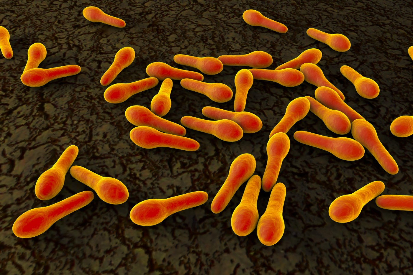 Cystic fibrosis and Clostridium difficile infection