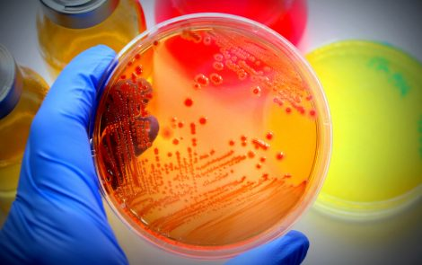 Higher Prevalence of Oral Candida Fungus Found in CF Patients