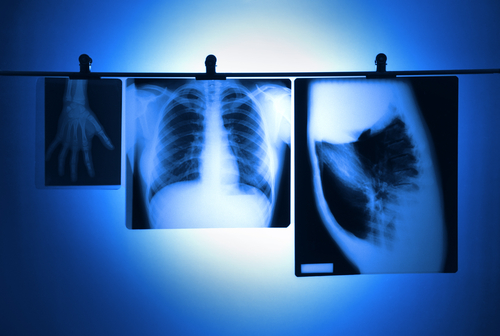 Chest X-Rays, Especially CT Scans, Raise Lifetime Cancer Risk in Young CF Patients, Study Says