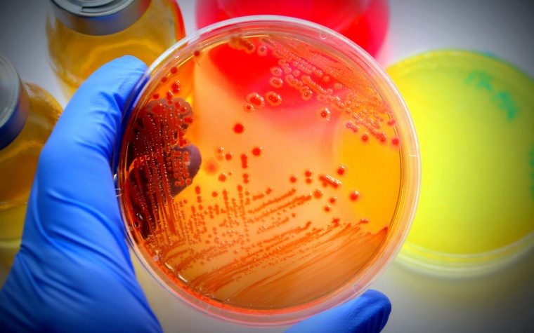 2 CF Case Reports Show Successful Use of GM-CSF for Treating Nontuberculous Mycobacteria