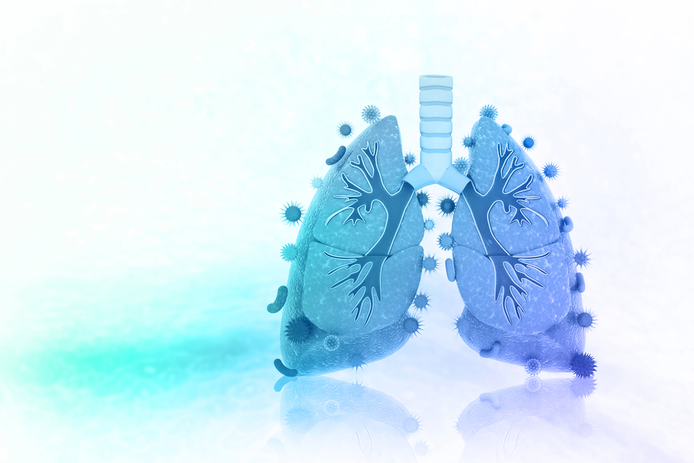lung transplant guidelines