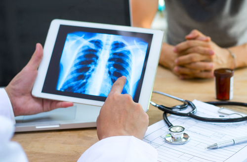 Acebilustat Seen to Prevent Pulmonary Exacerbations in CF Patients in Phase 2b Trial