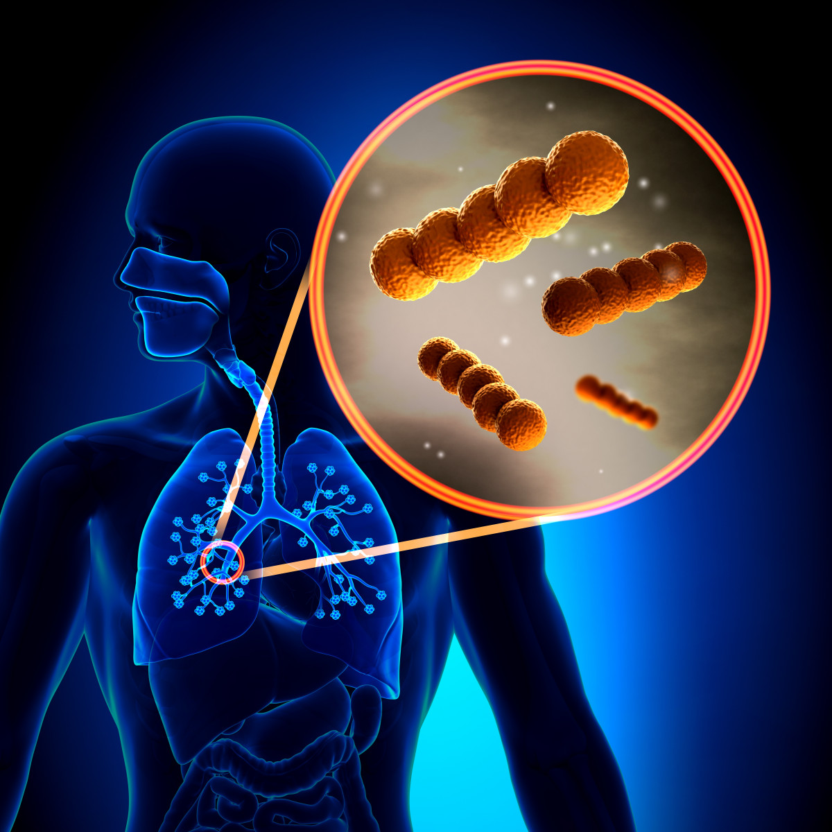 bacteria and lung infections