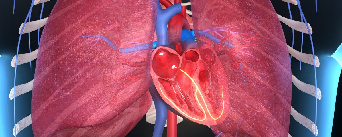 Pulmonary Artery Measurements Used to Identify Pulmonary Hypertension in CF Patients