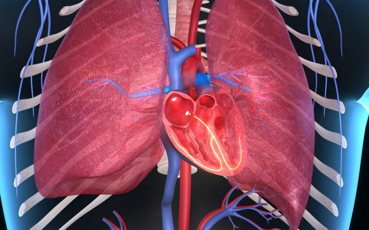 pulmonary hypertension and CF