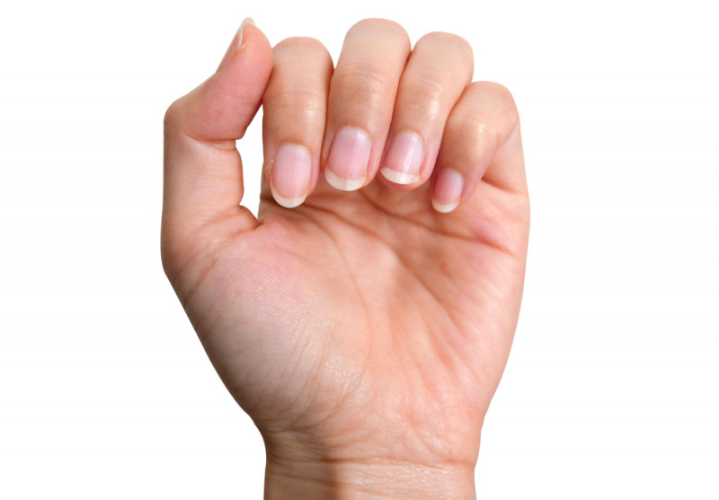 CF palm wrinkles and water/cysticfibrosisnewstoday.com/palms as diagnostic tool