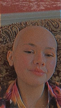 Miracles | Cystic Fibrosis News Today | Gemma smiles, showing off her bald head.